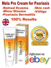 Psoriasis Dermatitis, Natrual Eczema, Vitiligo, Skin Cream, Minor Disease Cream