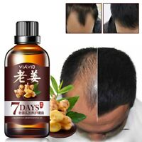 Hair Regrow 7-Day Ginger Germinal Serum Essence Oil Loss Treatement Growth 30ML