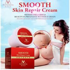 Unisex Smooth Skin Cream Scar Removal Maternity Skin Repair Body Stretch Marks