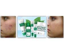 Tiande Master Erba Anti-acne Set: Detergente Gel, Crema, Lozione, Maschera