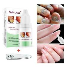 Fungus Stop is now Fungucept Nail Repair Solution For hands feet.0.33oz-10m F5X3