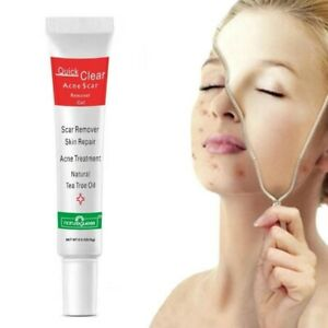 New Skin Care Acne Treatment Face Cream Scar Blackhead Remove Repair Oil Control