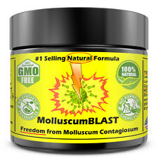 Molluscum Contagiosum Treatment Cream LARGE 60 ml Kids Adults 100% SAFE &NATURAL