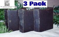 Authentic 20% Pine Tar Soap - (3 Bars) 4.1-4.5oz - For Psoriasis Eczema Dandruff