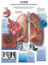A3 Medical Poster – COPD Chronic Obstructive Pulmonary Disease (Text Book)