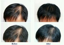 Very Effective Result Yuda-No1 Fast Hair growth serum oil 100%Natural Extract UK