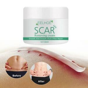Scar Removal Cream Repair Spots Acne Treatment Blackhead Shrink Pores 30ml