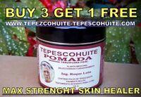 TEPEZCOHUITE CREAM MAX STRENGTH ANTI AGE AGING PSORIASIS ECZEMA ACNE SCAR POMADE