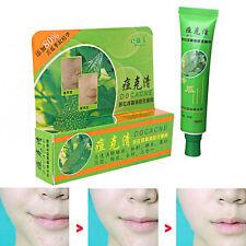 Powerful Safe Plant Element Remove Acne Scars Bitter Melon Treatment Cream 30g
