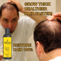 VIRGIN HAIR GROWTH SHAMPOO UK's No.1 STOP HAIR LOSS and baldness treatment