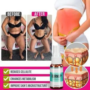 10ml Burn-Up Ultimate Cellulite Heating Spray HOT SALE A U