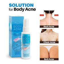 Body Acne Treatment Clarify Spray MISTINE Clear Pimple Blackhead Butt Chest Back