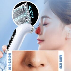 Small Bubble Skin Cleansing Hydro Dermabrasion Hydra Household Facial Machine