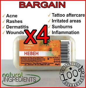 4x Natural Calendula soap Acne,Rashes,Inflammation,Irritation,Tattoo aftercare