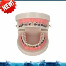 Dental Orthodontic Treatment Model Typodont Metal Ceramic Bracket Arch Wire Tube