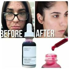 The Ordinary Peeling Solution AHA 30% + BHA 2% 30ml Exfoliating Face Brighten