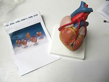 Heart Model with Bypass