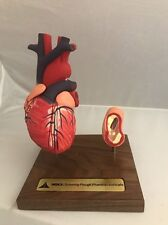 Merck Heart and Artery Anatomical Model In Excellent Condition Atherosclerosis