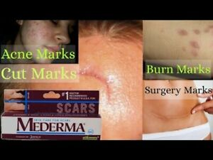 2x  Mederma Skin Care for Scars STRETCH MARK REMOVAL ACNE Treatment BURN 10 gm