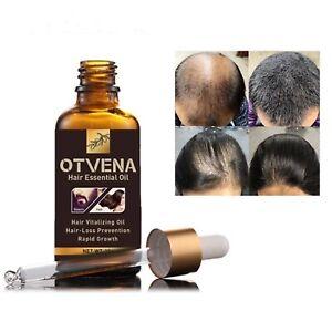 Otvena 100% Natural Organic Hair Essential Oil Treatment - Hair Growth Treatment