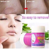 Thailand Aloe Vera Whiteheads Mitesser Entfernung Poren Akne Nase Maske