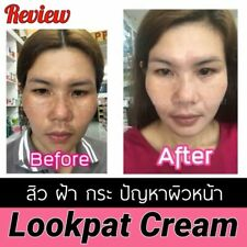 Remove freckle speckle peels dark spot face facial skin whitening Melasma