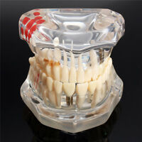 New 1pcs Removable Teeth Dental Study Teaching Tooth Model Disease Educational