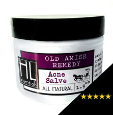 Amish Acne Salve, for acne, cysts, boils, ingrown hairs
