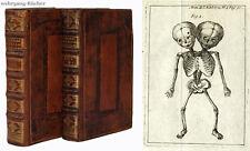 Histoire de l'academie royale: Kind mit zwei Köpfen, 18 Kupfer. 2 Bände, 1731-32
