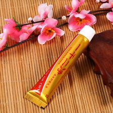 Psoriasis Eczema Ointment Cream Skin Diseases Efficient Chinese Medicine Cream