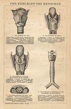 1895= MEDICINA = GOLA= Antica Tavola Medica = Stampa Antica = Old Engraving