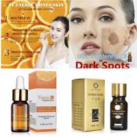 10ml Anti Dark Spots Vitamin C Oil Ultra Brightening Spotless Oil -Free Shipping