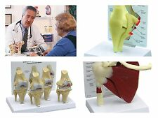 Joint  SET - GPI knee 1000 Muscled shoulder 1810 orthopedic 4 stage osteo knee