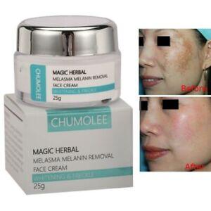 Strong Removal Melasma Whitening Cream Freckle Speckle Spots Melanin Pigment