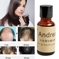 Ginger Oil Hair Anti Drying Hair Essential Oil Moisturizing Scalp  Treatment