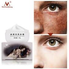Strong Effect Whitening Freckle Cream 40g Remove Melasma Acne Dark Spot Pigment