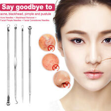 Whitehead Blackhead Pimple Acne Blemish Comedone Extractor Remover Tool Kit 4Pcs