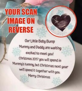 Personalised 2021 Bumps First Christmas Bauble Pregnancy Scan Image Keepsake