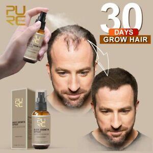 Hair Growth Spray Fast Grow Treatment Hair Loss Thinning Care 30ml