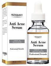 Anti Acne Treatment for Face & Pore Minimizer Serum