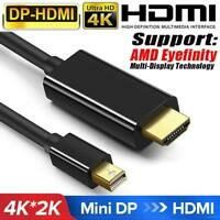 Mini DP Display Port Thunderbolt 2 MDP to HDMI Cable Adapter For iMac T1Y5