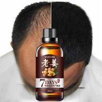 Hair Loss Treatment Ginger Care Fast Hair Growth Essence Oil for Men and Women