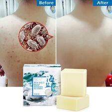 100g Sea Salt Soap Pimple Acne Treatment Goat Milk Moisturizing Face Wash Soap
