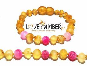 Girls Raw Honey Pink Baltic Child Love Amber Anklet Agate Nurture No Teeth UK