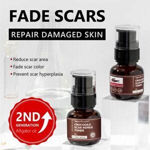 Crocodile Face Toner Repair Scar Serum Removal Acne Marks Shrink Pores Brighten