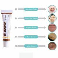 Oil Remove Scar Acne Spots Pigmentation Striae Corrector Cream Skin Body Face