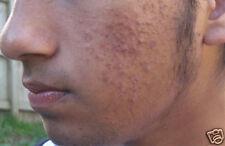 Compre 1 lleve 3 Gratis! epidermx II Microdermoabrasión Crema Para Cicatrices De Acné Manchas de líneas