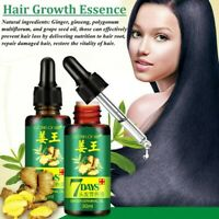 Ginger 7 Days Hair Growth Essential Oil Loss Natural Ginger Regrowth Serum