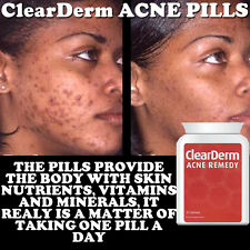 CLEARDERM ACNE PILLS TABLET STOP SPOTS REDUCE OUTBREAKS BLEMISHES CLEAR SKIN