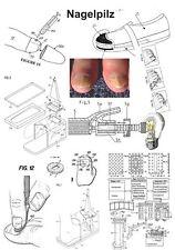 Nagelpilz Patente Ideen die helfen auf 3992 Seiten!
